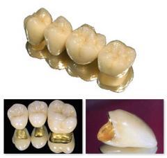 Протезирование зубов металлокерамикой (в Харькове)