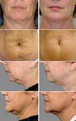 Laser fractional polishing with the RF/CO2
