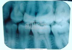 Диагностика жизнеспособности зуба Киев от компании