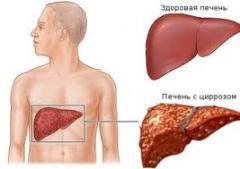Виды гепатита c