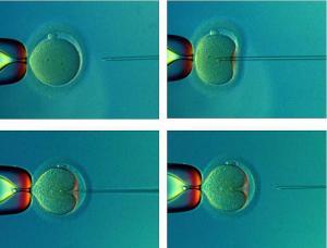 Донорство яйцеклеток, ооцитов в Украине, Купить,