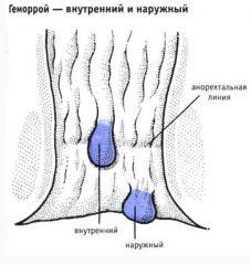 lecheniya-naruzhnogo-gemorroya