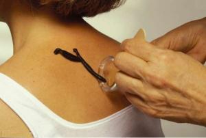 Гирудотерапия курсы обучения практика