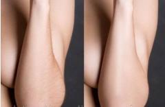 Лазерная эпиляция: руки по всей длине