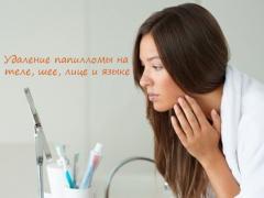 Удаление папилломы на теле, шее, лице и языке