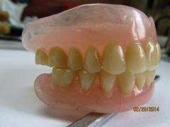 Литье нейлоновых зубных протезов!