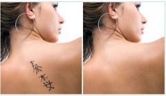 Удаление татуировок