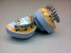 Металлокерамика на имплантатах