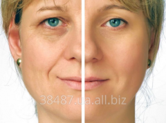 Face rejuvenation, plasticity and face lifting
