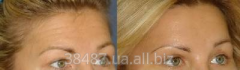 Rejuvenation of a forehead and raising of eyebrows