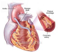 Operations on coronary shunting