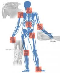 Rehabilitation of skeletal and muscular violations