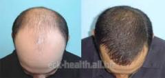 Transplantation of hair