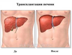 Transplantation of a liver
