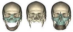 Computer tomography of bones of a facial skeleton