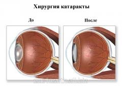 Operation of a catarac