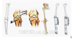 Корригирующие остеотомии