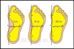 Treatment of pathology of foot (deformations,