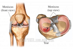 Arthroscopic resection of meniscuses