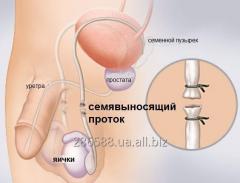 Вазэктомия. Мужская стерилизация.