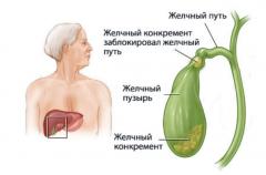 Диагностика и лечение желчнокаменной болезни