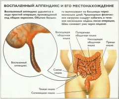 Диагностика и лечение острого и хронического аппендицита
