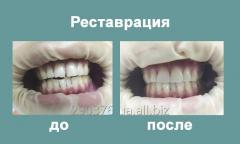Художественная реставрация зуба
