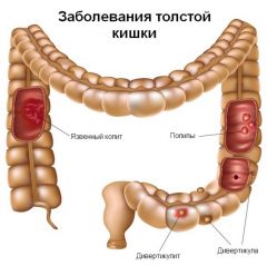 Диагностика и лечение заболевания толстой кишки