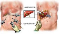 Диагностическая лапароскопия