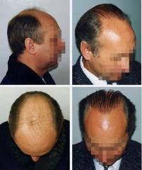 Change (transplantation) of hair