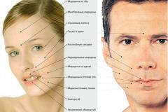 Planimetric face lifting, breasts, shins and so
