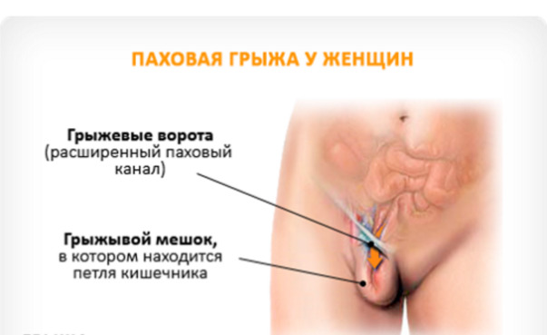 diagnostika_i_lechenie_gryzhi_zhivota