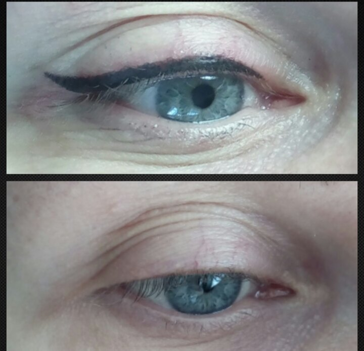 kosmetolog_tatuazh