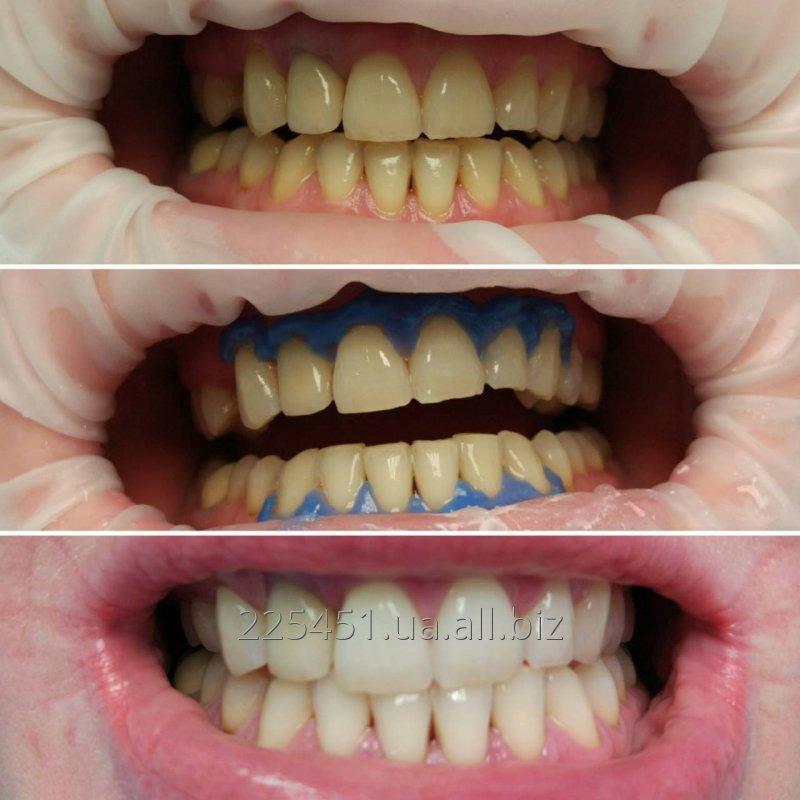 otbelivanie_zubov_sistemoj_magic_smile