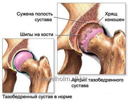 endoprotezirovanie_tazobedrennogo_i_kolennogo_sustava