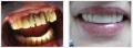 Художественная реставрация верхней фронтальной группы зубов после снятия металлокерамического моста с последующим шинированием