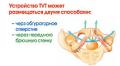 Лечение заболеваний мочеиспускательного канала, стрессовое недержание мочи, выпадение матки  в клинике профессора им.Феськова