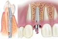 Имплантация зубов в Киеве клиника Ортолайф