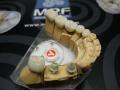 Изготовление зубных протезов для стоматологий