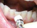 Лечение зубов по скорой помощи