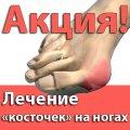 Лечение «КОСТОЧЕК» (шишек) на ногах без операции