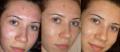 Чистка кожи механическая