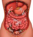 Диагностика и лечение спаечной болезни органов брюшной полости