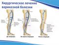 Диагностика и лечение варикозной болезни вен нижних конечностей