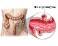 Дивертикулы толстой кишки. Диагностика и лечение
