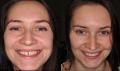 Унікальна робота по відновленню коронки зуба